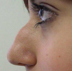 Do Nasal Dilators Really Work